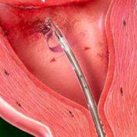 Биопсия эндометрия