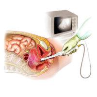 Экспертное УЗИ органов малого таза